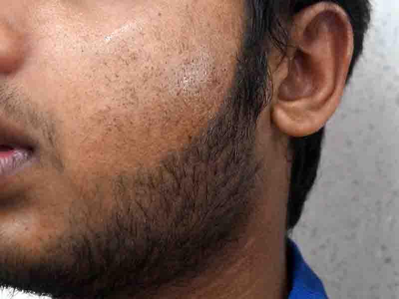 Beard Electrolysis - White hair removal